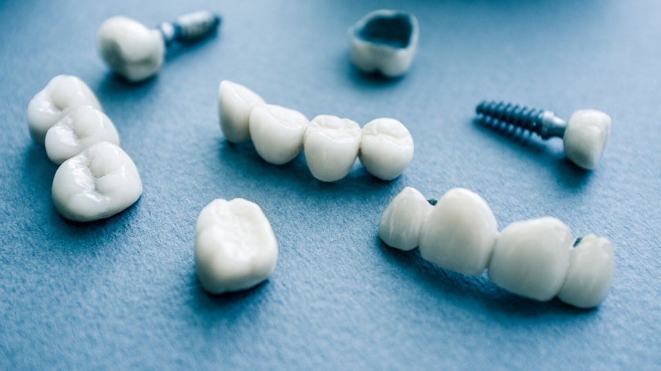 Five reasons why dental implants are so popular