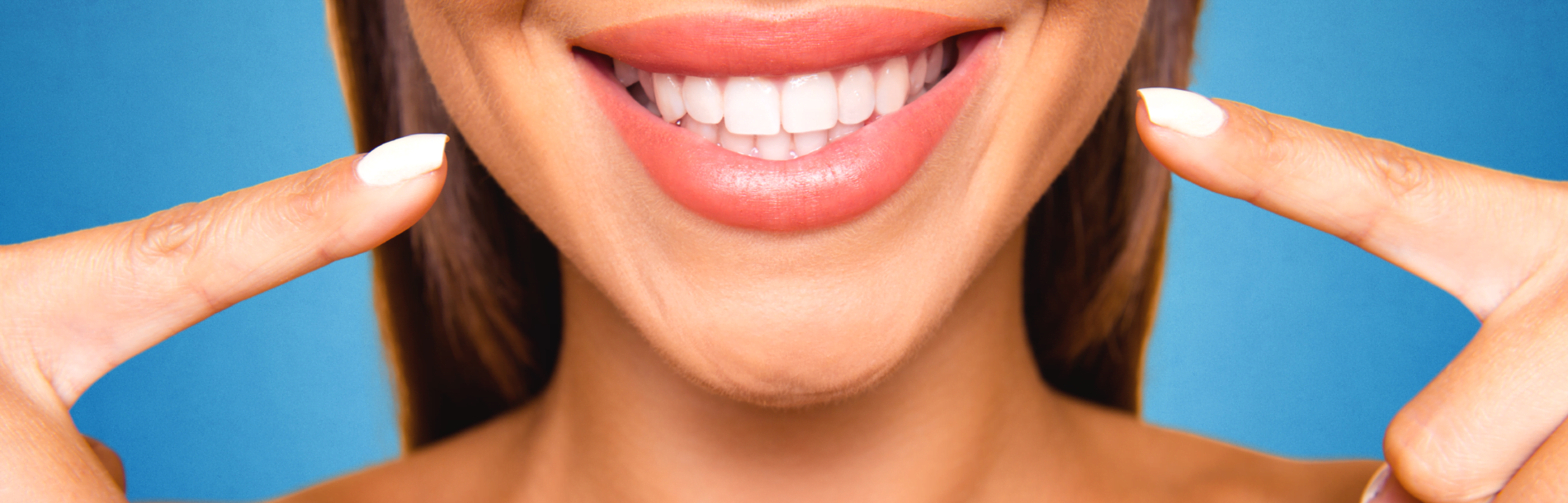 Veneers Central Coast- Q & A with Dr Monica