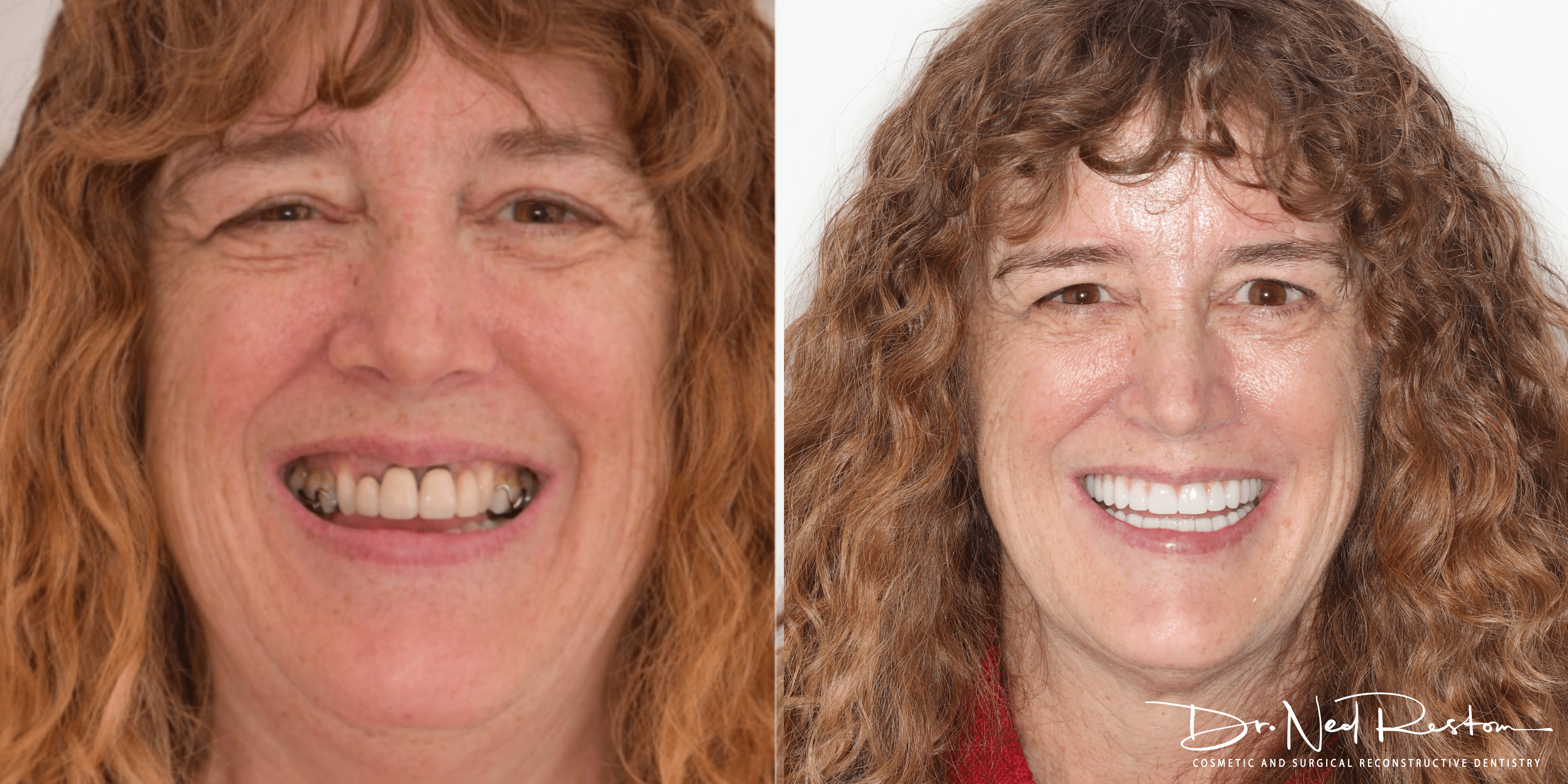 before and after teeth on implant girl