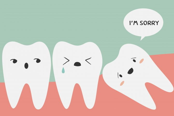 wisdom teeth impact sore